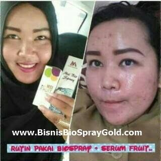 Testimoni MSI Bio Spray, Testimoni MSI Multy Spray http://www.bisnisbiospraygold.com/2016/12/testimoni-msi-bio-spray-multy-spray.html