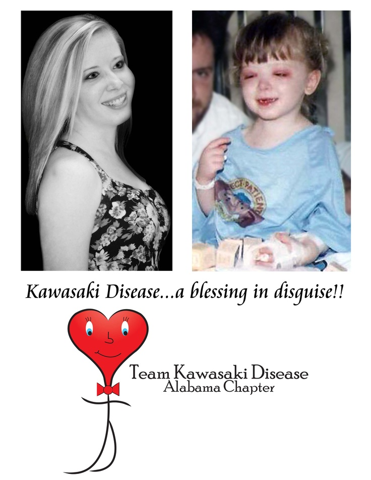 I, Brooke, became a fighter at the age  of two. Kawasaki Disease will never defeat me!   Join me in my mission to spread awareness and raise funds. :)  Facebook - Team Kawasaki Disease - AL