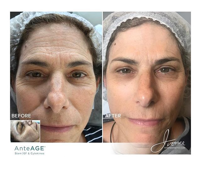 Look At These Incredible Results From Stem Microneedling Anteage