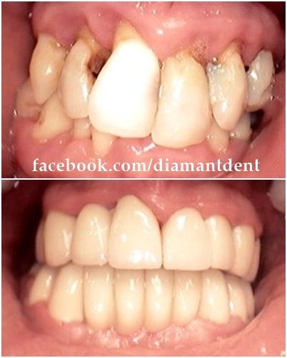 Before After Have a perfect and healthy smile!