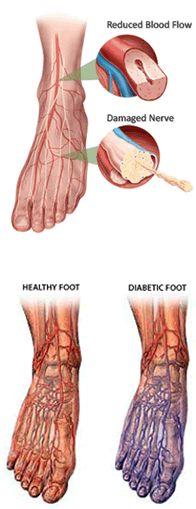 I do not have diabetes but I do have skin fiber neuropathy. Aka smurf feet.