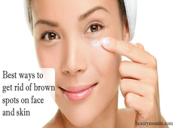 Best Ways To Get Rid Of Brown Spots On Face And Skin, When skin is exposed to the sun, it causes an increase in the production of cells known as melanocytes that rise melanin in the skin, thus turning the skin blacker. These dark skin patches are known as brown spots, age spots, #chestacnecauses #acnecausesonface