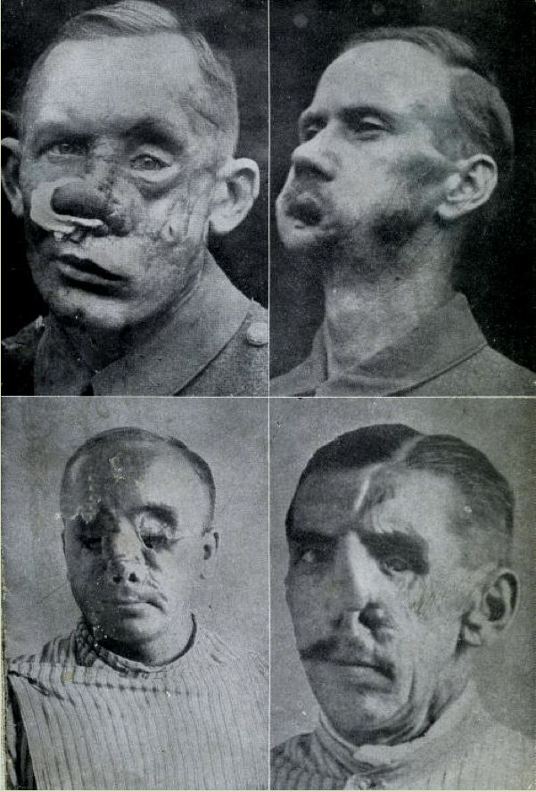 Dismembered Soldiers WWI - Facial Injuries
