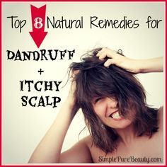 Fashion, Style And Beauty : Top 8 Natural Home Remedies for Dandruff and Itchy Scalp | How to get rid of Dandruff