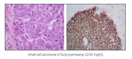 Small cell carcinoma of lung expressing CD56 (right). - http://www.propath.com/companies/press-clippings/26-newsletters/297-cd56-ncam-august-2001