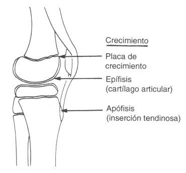 Lesiones por Sobreuso en Atletas Jóvenes - Prevención y Rehabilitación de Lesiones | G-SE