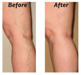 How to Cure and Prevent Varicose Veins Naturally