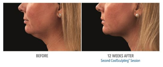 What can CoolSculpting do for your chin and neck area? Check out these jaw-dropping #BeforeAndAfter shots from patients who tried and loved this game-changing, fat-freezing treatment!  #FreezeTheFat #FearNoMirror