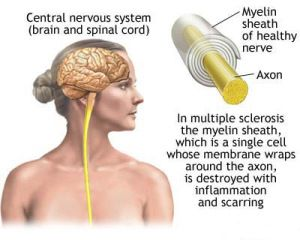 The 25 Best Ideas About Motor Neuron Disease Treatment On
