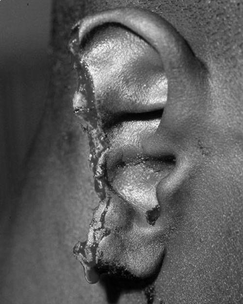 Evander Holyfield's ear, after Mike Tyson had a Nibble   AHHJHHHHHAKU:SGBDFLAJHGF