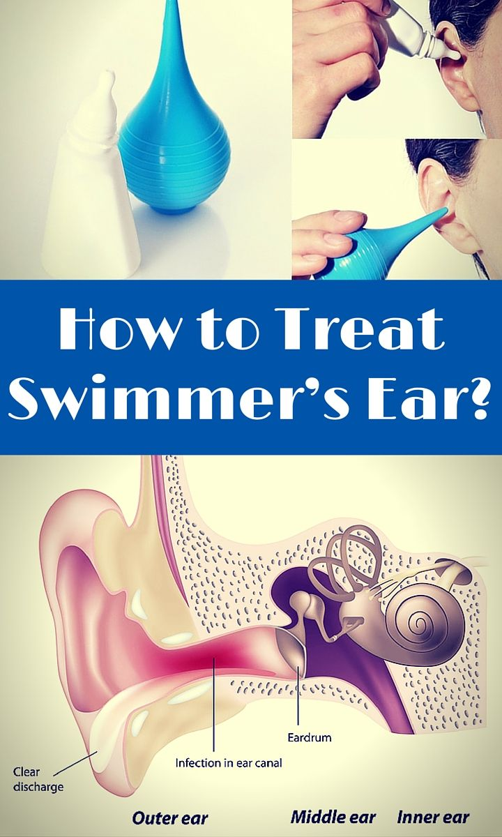 Swimmer's ear is an ear infection localized in your outer ear canal, and is one of the most common problems among swimmers (hence the name!). But how can you tell if your ear infection or ear ache is actually swimmer's ear and not some other problem? In this article, we'll look at how to diagnose the problem and what to do for swimmers ear.
