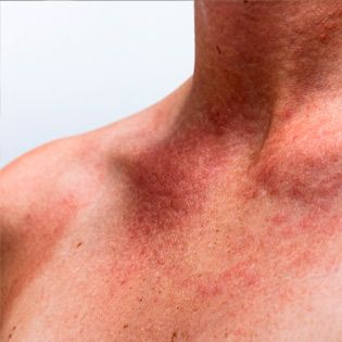 Can't stop scratching? Here's how to cool down a heat rash (for a while).