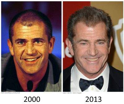 Mel Gibson Hair Transplant Before And After