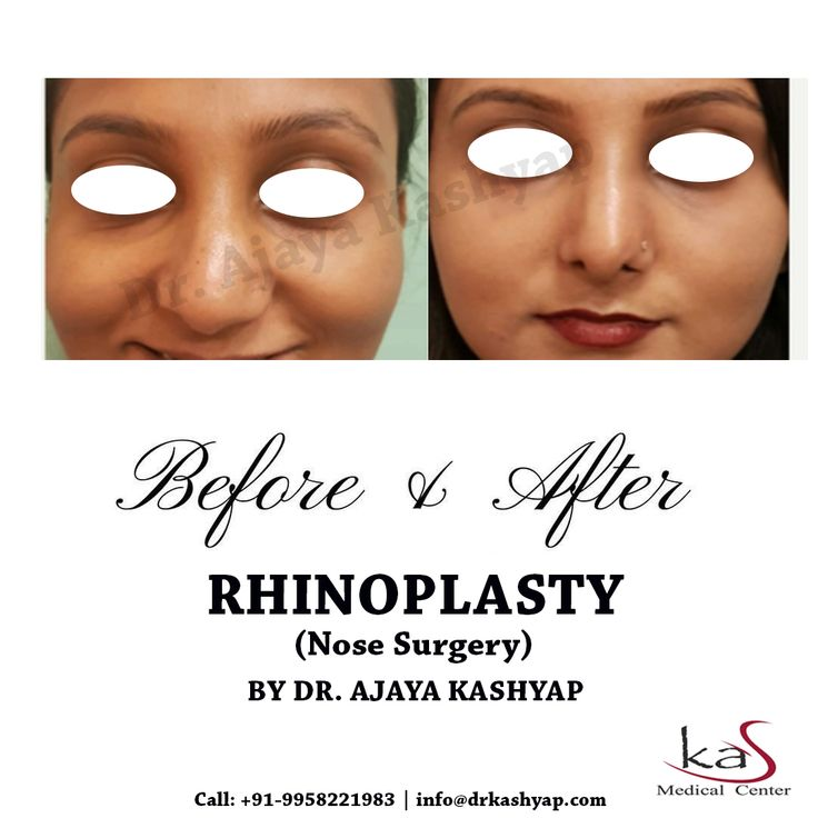 Get the best rhinoplasty surgery at the lowest price in