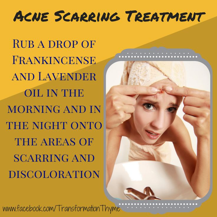 Do you have old scars that remind you of your teen years? Experience scarring or discoloration from Acne in your past? Try these new Young Living Essential Oils recipes for acne scarring! To find out more about how to transform your life one drop at a time! Keep calm and Oil On! www.theoildropper.com