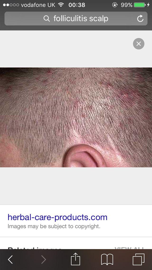 Folliculitis Symptoms Inflamed Hair Follicles Infectious