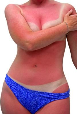 Natural Cure for Sunburn: Are you suffering from sunburn? Try a natural cure for sunburn. . . I have some home remedies for the sunburned skin. Try it, these will really work