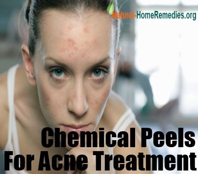 Natural Treatments For Acne Keloidalis Nuchae