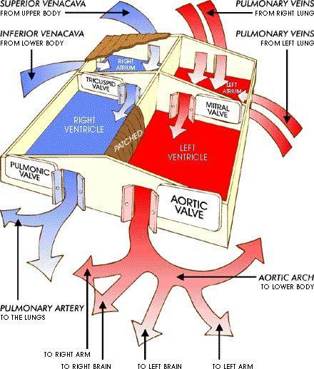 GORE® CARDIOFORM Septal Occluder for PFO Closure