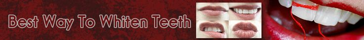 Best Way to Whiten Teeth