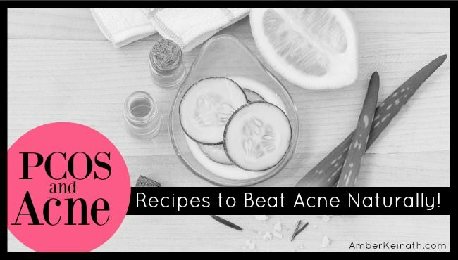 What causes PCOS acne? How do you get rid of acne naturally? Homemade recipes for PCOS acne.