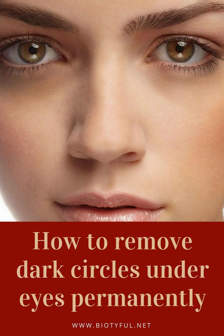 How to remove dark circles under eyes permanently | Skin Care | Dark