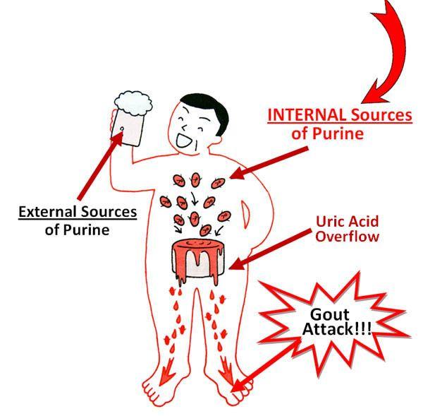 gout in big toe pain gout remedy cherries lemon juice for gout treatment