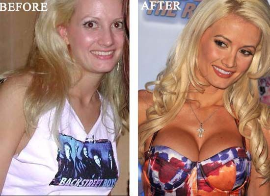 Holly Madison Plastic Surgery Photo Before and After – www.celeb-surgery… –
