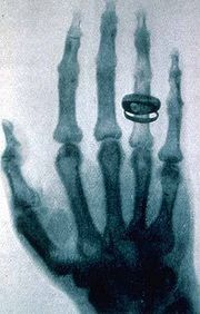 One of the first X-ray shadowgraphs taken by Röntgen showing the bones of his wife's hand including the wedding ring