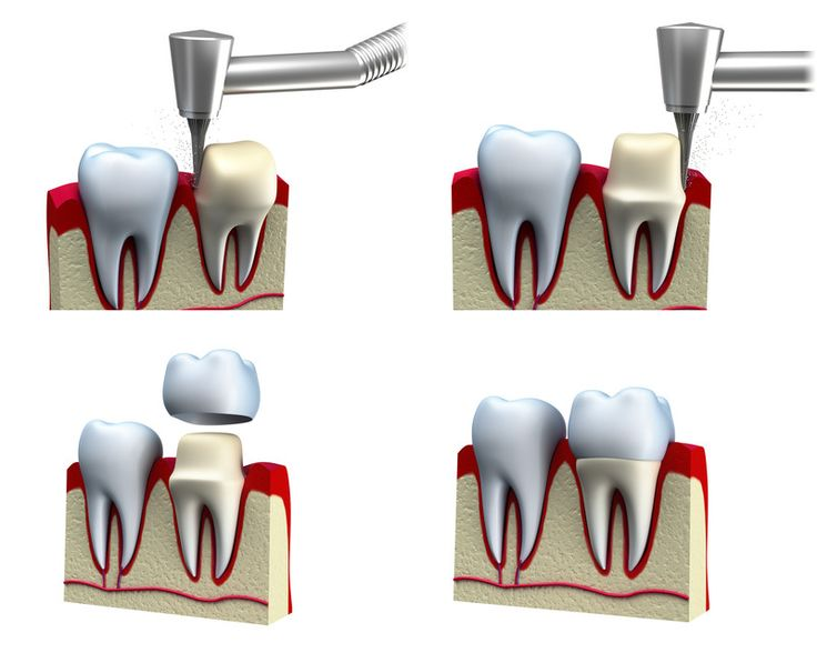 Dental Crown - Procedure And Problems - DentAbout