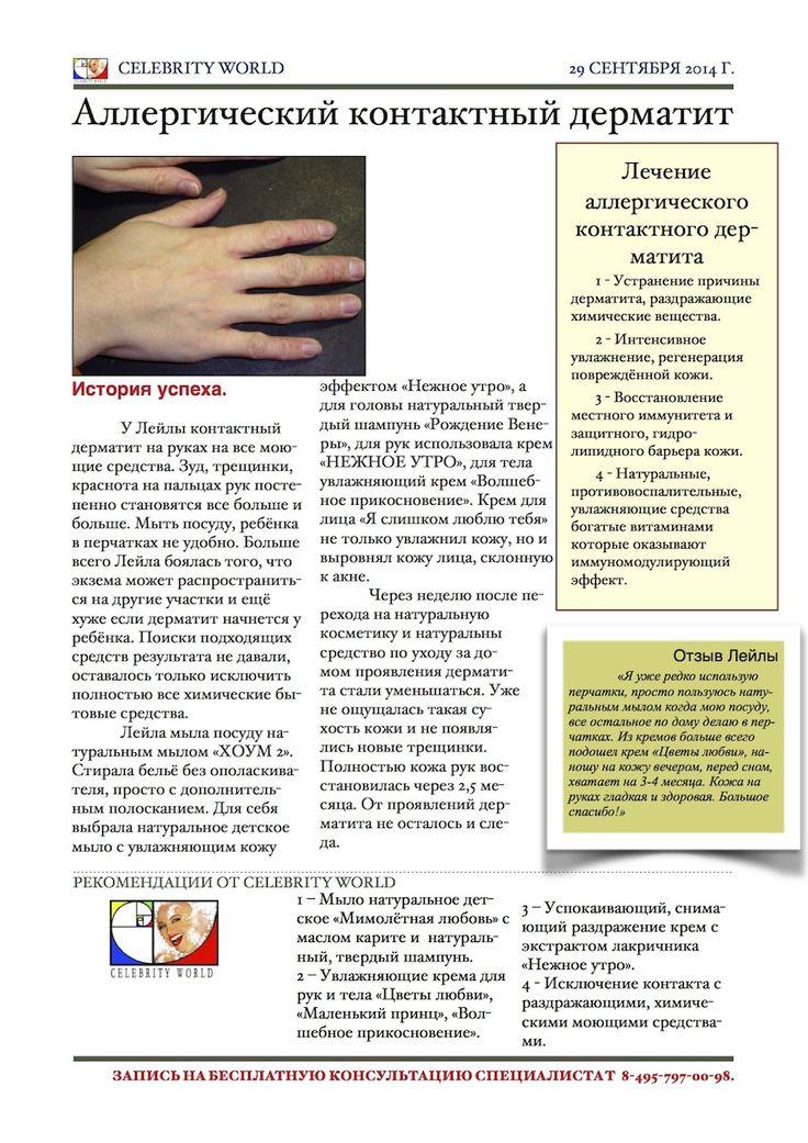 Аллергический контактный дерматит. Дерматит на руках, уход и лечение. http://www.celebrityworldcare.com/blog/allergic-contact-dermatitis