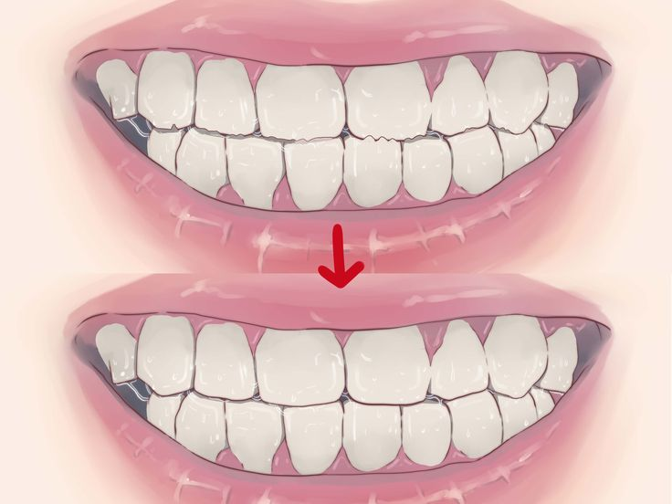 Teeth grinding is known by the medical term bruxism and most commonly affects people in their sleep.http://www.webmd.com/oral-health/guide/teeth-grinding-bruxism Over time, teeth grinding can damage the teeth or cause other health...