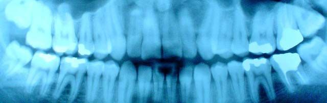 Some patients can go as long as five years without X-rays if there is no history of dental problems or gum disease and visit their dentist every six months for check-ups, as recommended. #Artofmoderndentistry