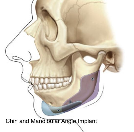 #Chin implants help improve the contour of a weak chin, achieving a harmonious balance to the facial features and therefore enhancing attractiveness.
