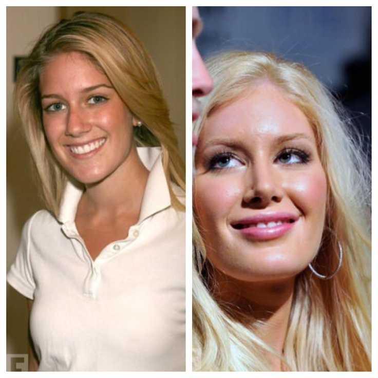 Celebrities With Plastic Surgery Heidi Montag Courteney: Bad Plastic Surgery