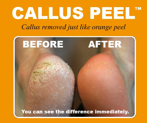 Callus relief products