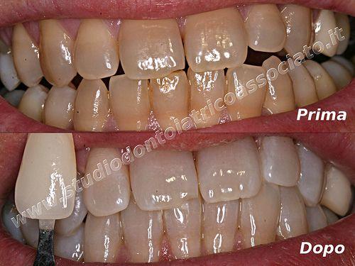 """Materiale fotografico """"Prima e dopo"""" i trattamenti di sbiancamento dentale - a cura dello Studio Odontoiatrico Associato Dr Romolini Dr Rustichini Dr.ssa Salmi"""