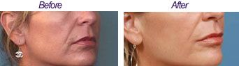 Botox injections are used to straighten and lift the downward turning corners of the mouth, giving the person happier and more pleasant appearance. Around 5 units of Botox injected by a TRIFECTA Med Spa NYC doctor into the muscles that pull the angle of the mouth downwards allows the corners of the mouth to turn upwards.