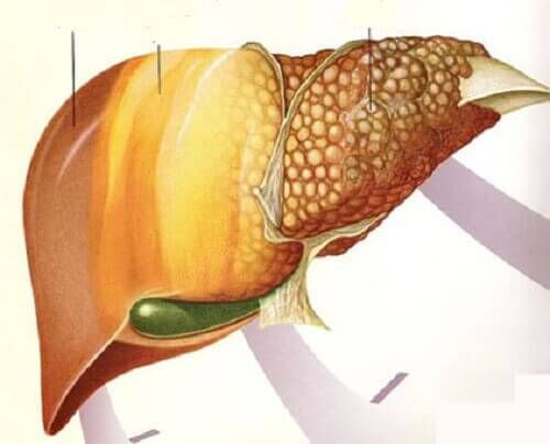 Owoce, które pomogą stłuszczonej wątrobie