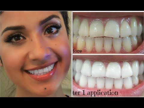 2 Best Teeth Whitening Method At Dentist - Learn about professional teeth whitening near me professional teeth whitening cost in office teeth whitening professional teeth whiteni http://reviewscircle.com/Teeth-Whitening-4-You