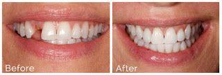Basics of dental implants #DentalImplants