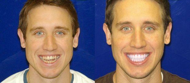 Ge dig själv, eller någon du tycker om, ett bländande vitt leende.
