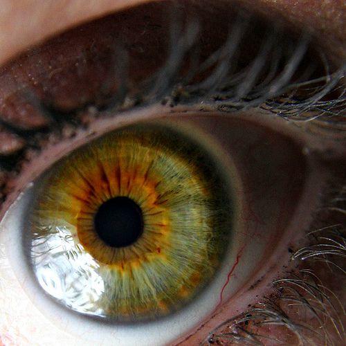 Central Heterochromia.  Green eye with orange rust coloured sunflower pattern around iris.