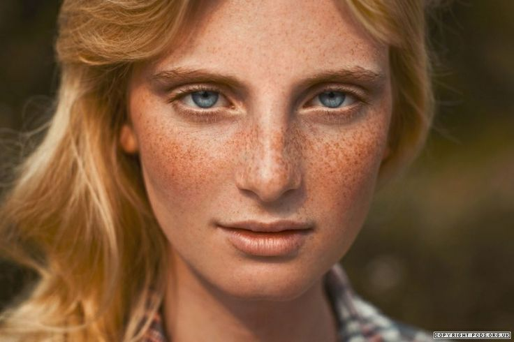 Best Way To Get Rid Of Freckles Naturally
