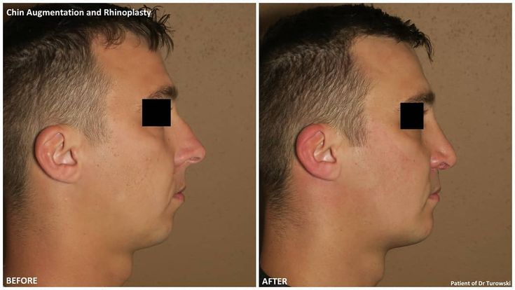 Shaping faces -powerful combo of chin enlargement …