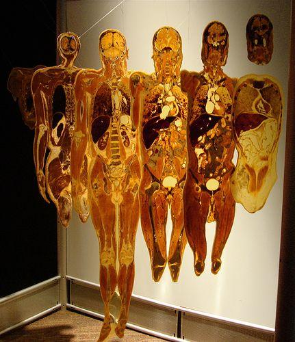 http://www.taringa.net/posts/imagenes/17643189/Human-bodies.html