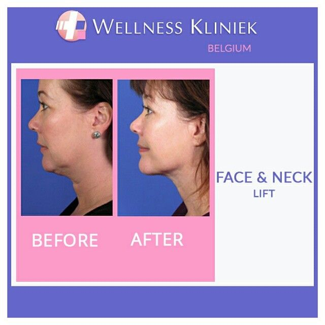 Wellness Kliniek Belgium Face and Neck lift surgery: Go for lots of info, before and after photos, prices to: http//www.wellnesskliniek.com/en/plastic-surgery/facelift/smas-facelift . Get all the information you need! @Wellness_Kliniek #facelift, #necklift, #before_and_after_photos, #prices, #plasticsurgery, #cosmeticsurgery