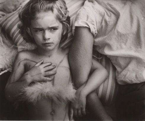 """Sally Mann, """"Jessie Bites"""" (1985)"""