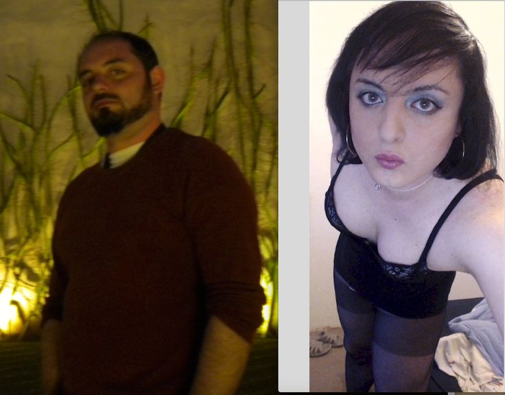 33 years old MtF: quick Before & After