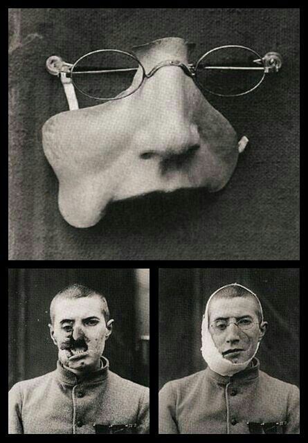 Casualties of War - Facemask for very bad wounded man - The very nature of trench warfare proved diabolically conducive to head and facial injuries. This leaded to tremendous advancements in plastic surgery and facial reconstruction. However, not all surgeries were successful. It was grimly accepted that facial disfigurement was the most traumatic of the multitude of horrific damages the war inflicted.